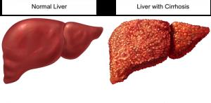 Dứa dại chữa viêm gan